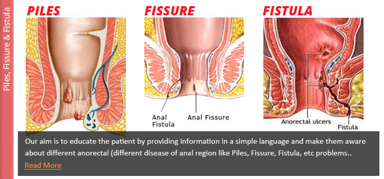 about-kissing-multiple-anal-fissure-white